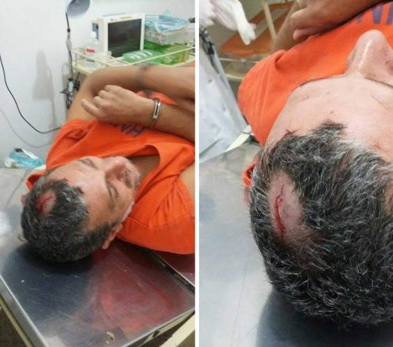 O interno Nivaldo Queiroz Galvão, que teve a cabeça quebrada no primeiro espancamento sofrido na unidade prisional psiquiátrica, há cerca de dois meses